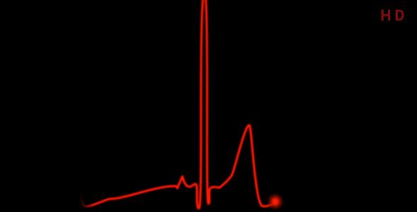 ویدیو نوار قلب و ضربان قلب